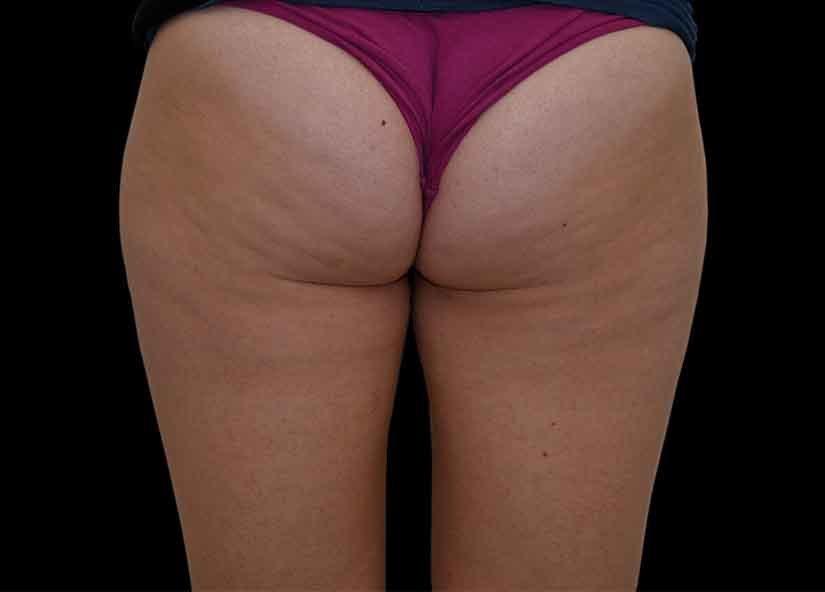 Buttocks_BTL_Unison_PIC_006-Before-female-BTL-aesthetics_825x592