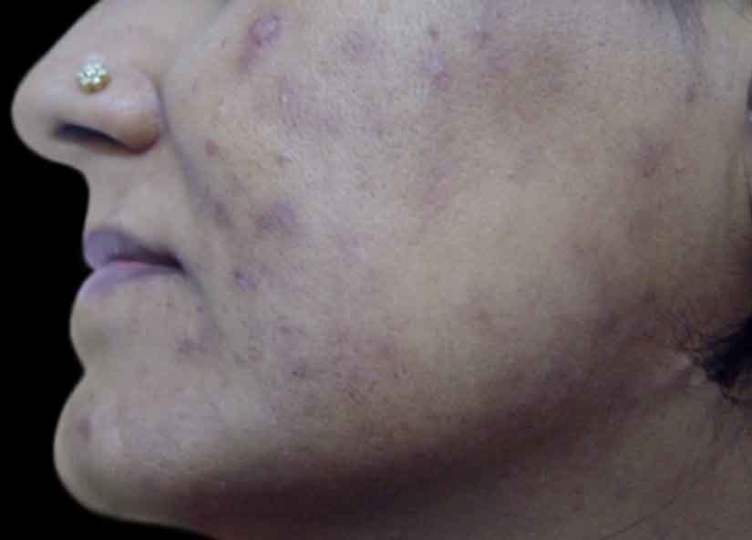 Head_BTL_Exilite_PIC_005-After-acne-female-Krishnakant-B-Pandya-Dr-6TX