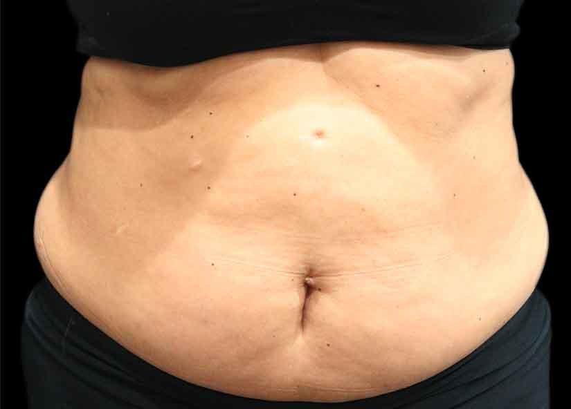 Abdomen_BTL_Vanquish_ME_PIC_024-Before-abdomen-female-Suneel-Chilukuri-MD_825x592px