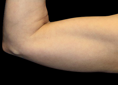 Emsculpt_PIC_075-After-arms-female-Reminder-Saluja-MD-3W-4TX_412x296