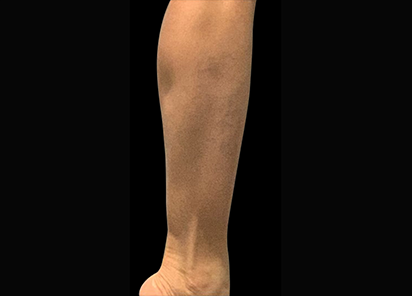 Emsculpt_PIC_087-Before-calves-female-Reminder-Saluja-MD_412x296px