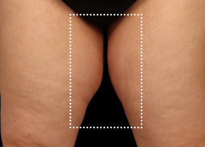 Emsculpt_Neo_PIC_063-after-inner_thighs-female-Diane-Duncan-MD_412x296px