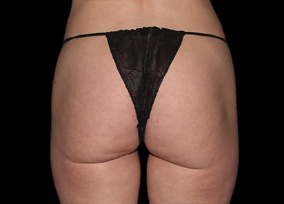 Emsculpt_PIC_041-Before-buttock-female-Chris-Bailey-Ovation-Med-Spa__412x296px