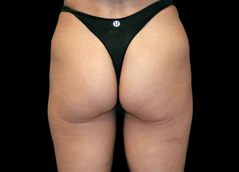 Buttocks_After-1_825x592_Exilis
