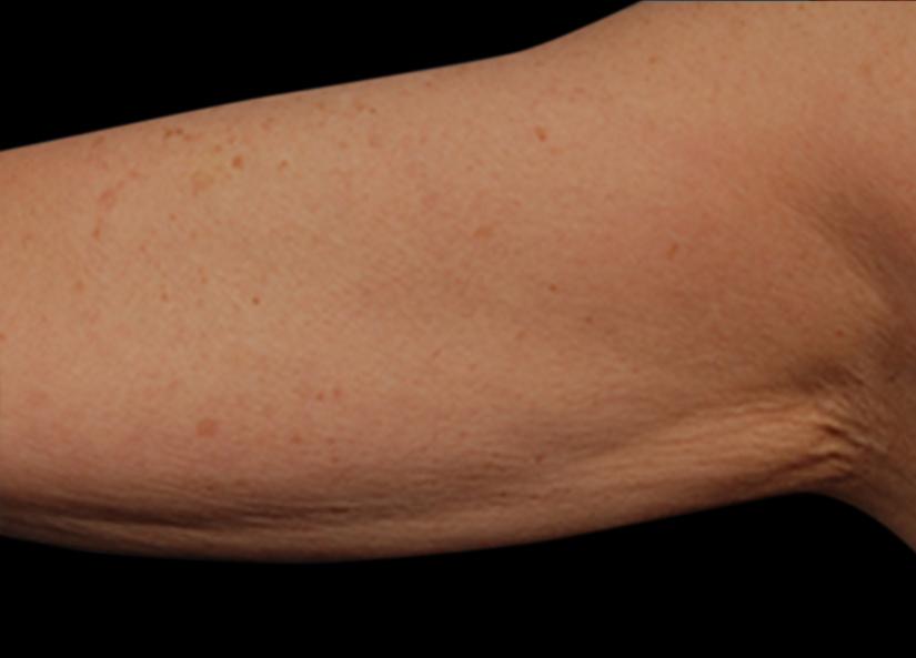 Arms_After-2_825x592_Exilis