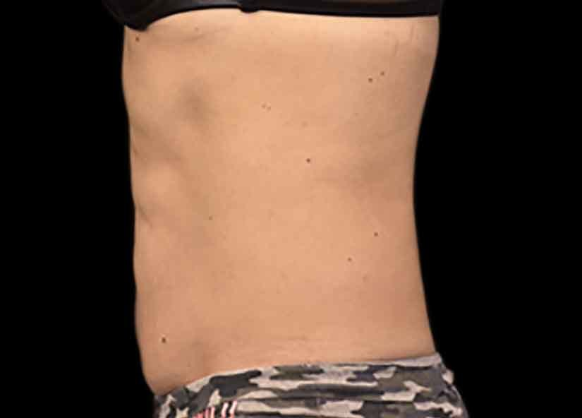Abdomen_BTL_Emsculpt_PIC_029-after-female-Paula-Lozanova-MD-4TX_825x592px
