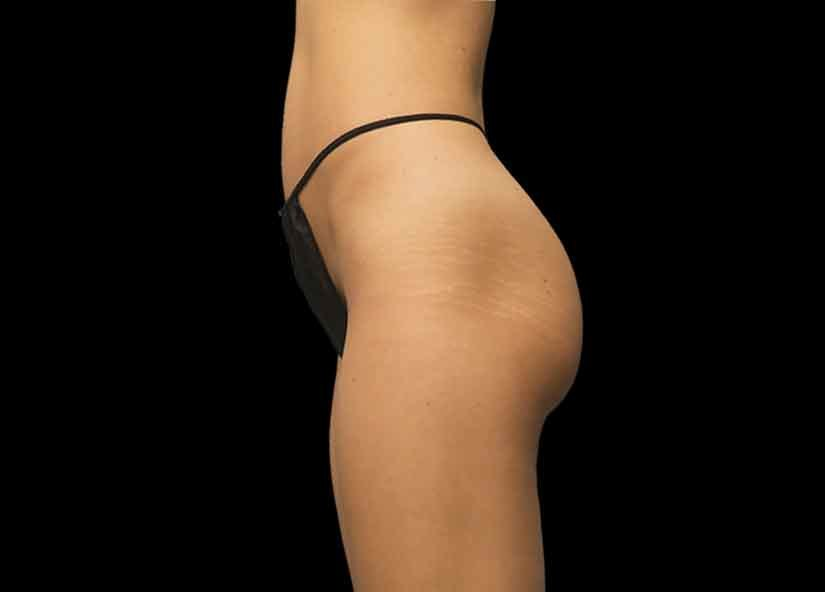 Buttocks_BTL_Emsculpt_PIC_037-before-female-Brian-Kinney-MD_825x592px