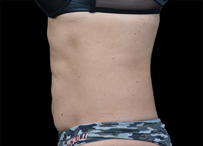 Emsculpt_PIC_022-After-abdomen-female-Paula-Lozanova-MD-4TX__412x296px