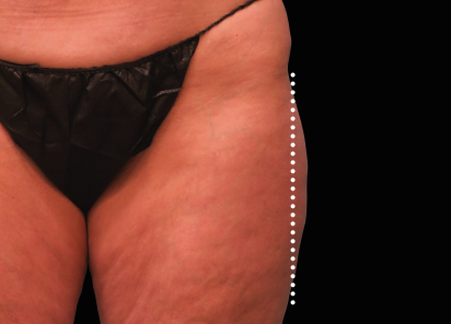 Emsculpt_Neo_PIC_49-after-outer_thighs-female-Brian-Kinney-MD-1M_412x296px