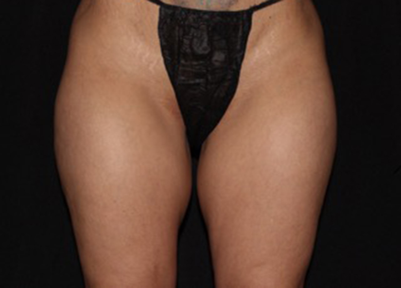Legs_BTL_Vanquish_ME_Flex_PIC_016-Before-legs-female-ChrisBailey_825x592px