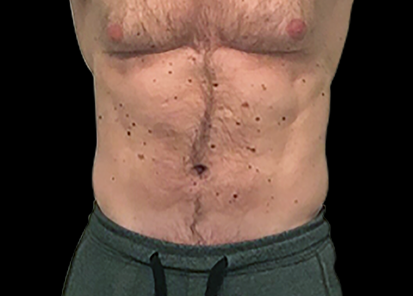 Emsculpt_PIC_007-After-abdomen-male-Anita-Sturnham-MD-4TX__412x296px