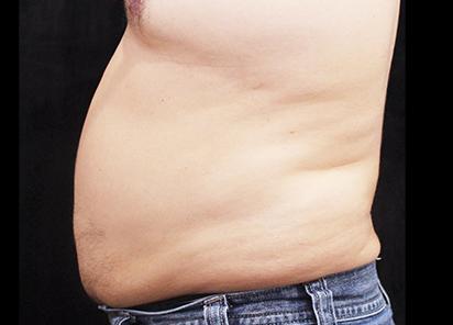 BTL_Vanquish_ME_PIC_088-Before-abdomen-male-Suneel-Chilukuri-MD_412x296