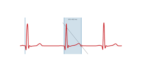 BTL-Cardiology_QT-module2