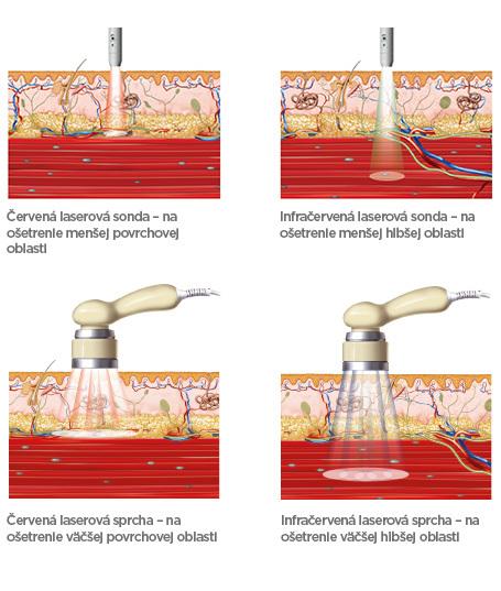 BTL_medical_background_laser_SK