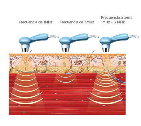 BTL-Ultrasound-medical-background_ES_tc
