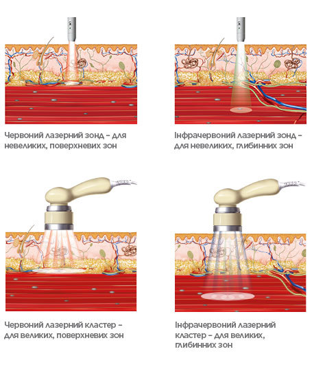 BTL-Laser-medical-background_v2_UKUA_tc