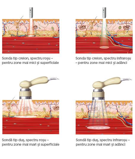 BTL-Laser-medical-background_RO_tc