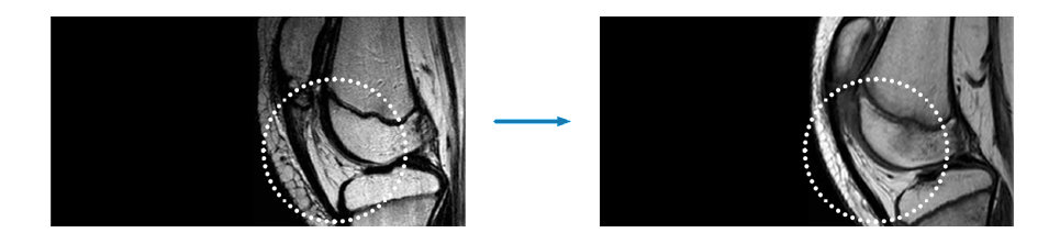 BTL-FSWT_Medical-bg_Pain-relief