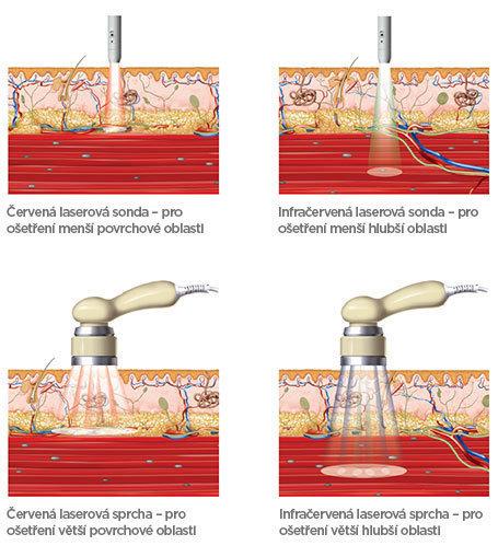 BTL-Laser-medical-background_CS_tc