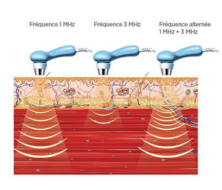 BTL-Ultrasound-medical-background_FR_tc