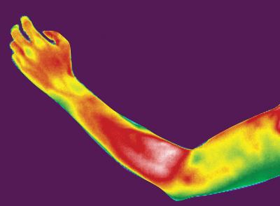 BTL-6000_TR-Therapy_PIC_thermal_Epicondylitis