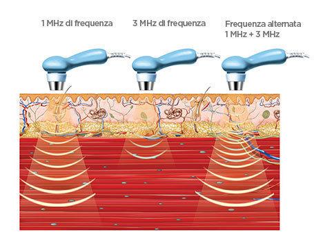 BTL-Ultrasound-medical-background_IT_tc