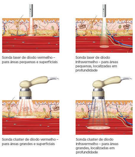 BTL-Laser-medical-background_PT_tc