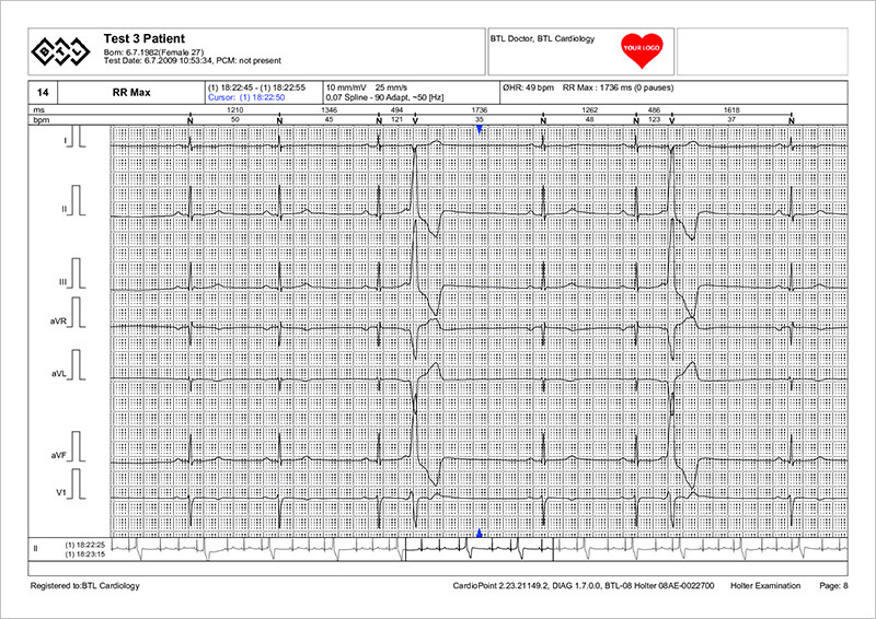 BTL_CardioPoint-Holter_Sample_report-ECG_strip