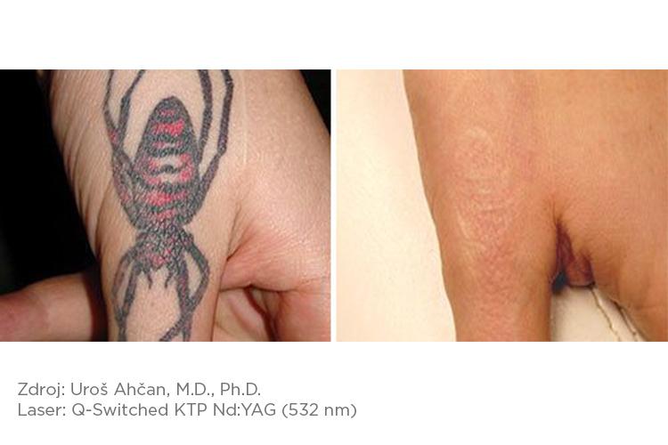 Fotona_pred-a-po_tattoo_2