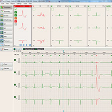 BTL_CardioPoint-Holter_Template_view