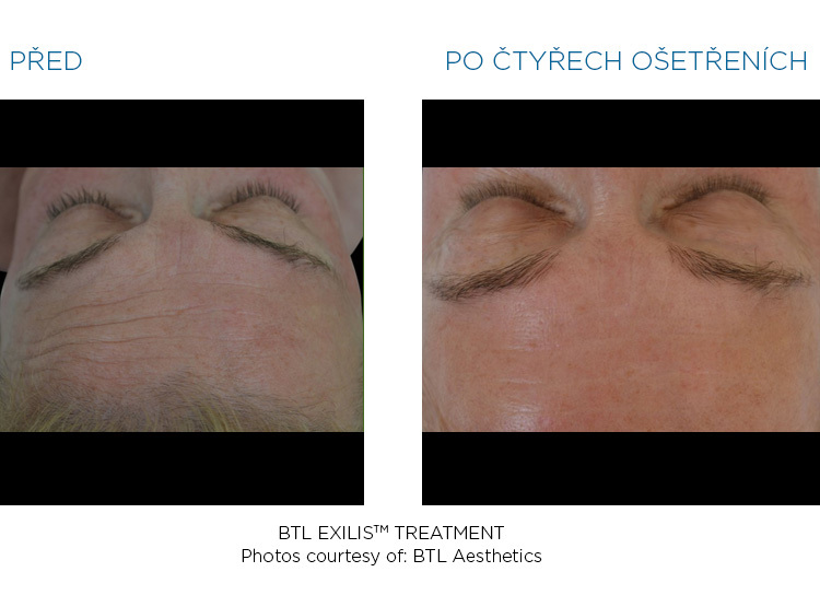 BTL-Exilis-female-forehead-before-after