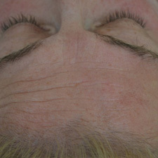 BTL-Exilis-female-forehead-before_thumb