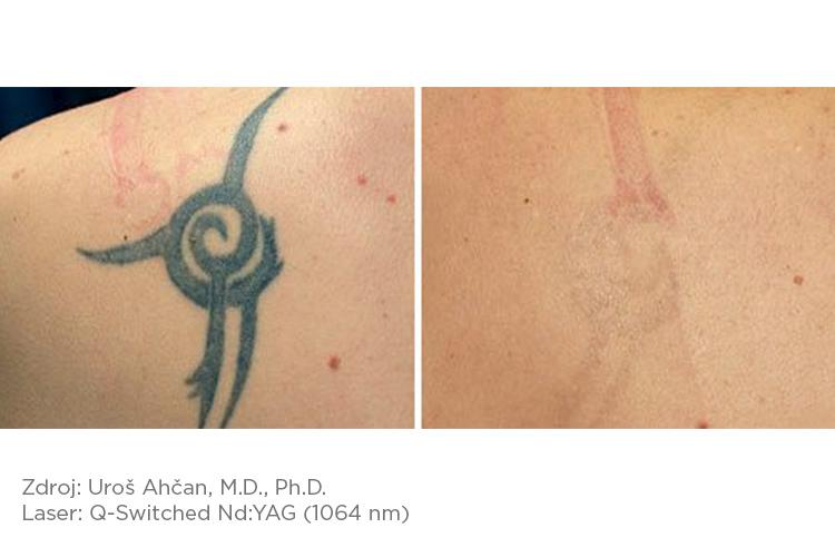 Fotona_pred-a-po_tattoo_3