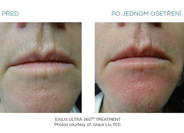 BTL-Exilis-ULTRA-360-female-lips-before-after