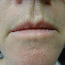 BTL-Exilis-ULTRA-360-female-lips-before_thumb