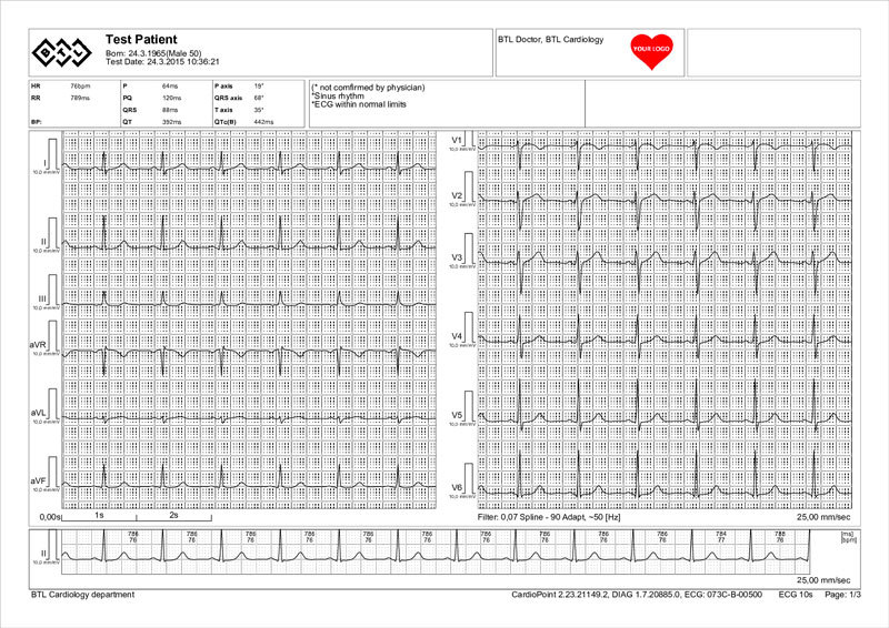 BTL-ECG_report_sample