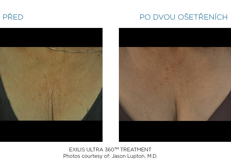 BTL-Exilis-ULTRA-360-female-decolette-before-after