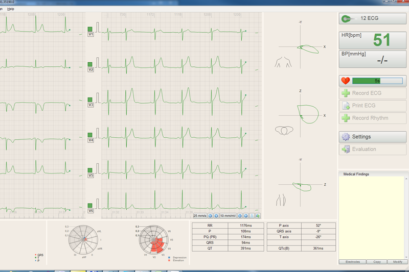 CardioPoint-Rest-2_800x533