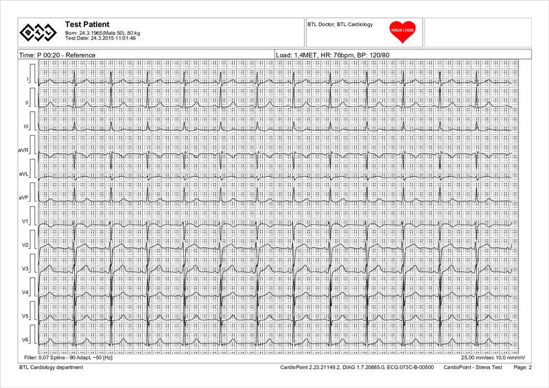 BTL-Cardiopoint-Ergo_report_1-sample-ECG_strip