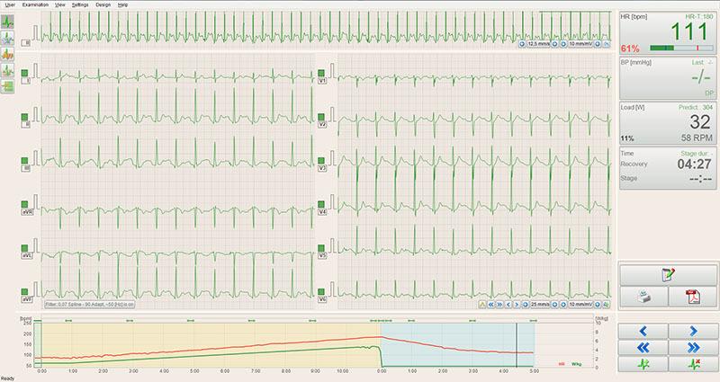 ECG-data-recording