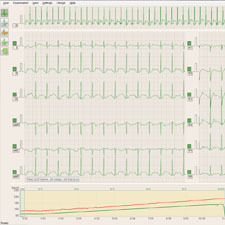 ECG-data-recording_thumb