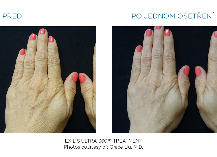 BTL-Exilis-ULTRA-360-female-hands-before-after
