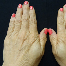 BTL-Exilis-ULTRA-360-female-hands-before_thumb