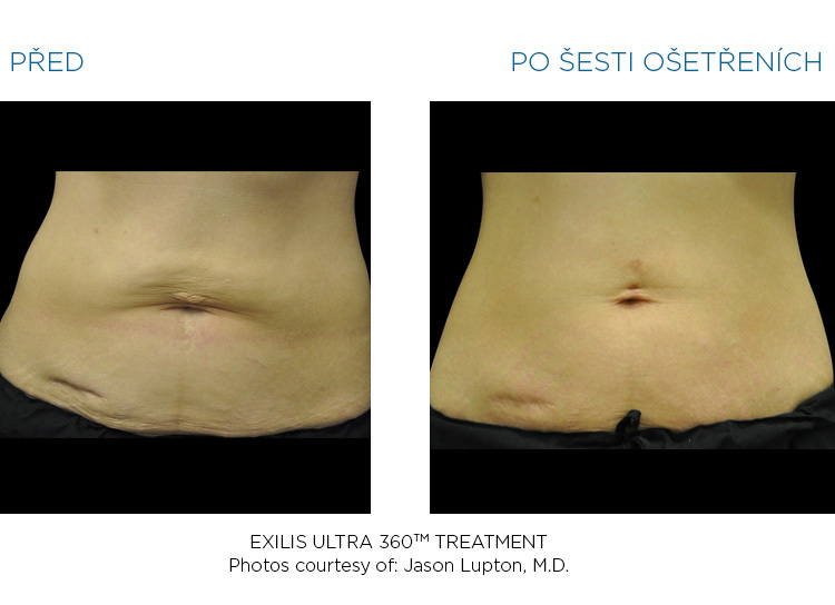 BTL-Exilis-ULTRA-360-female-abdomen-before-after