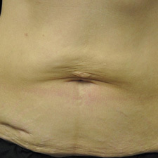 BTL-Exilis-ULTRA-360-female-abdomen-before_thumb