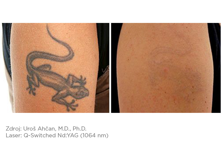 Fotona_pred-a-po_tattoo_1