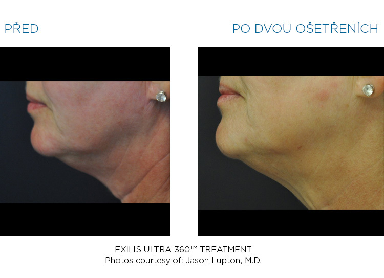 BTL-Exilis-ULTRA-360-female-throat-before-after