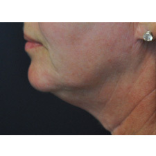 BTL-Exilis-ULTRA-360-female-throat-before_thumb