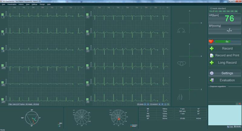 BTL-ECG_2_Recording_1