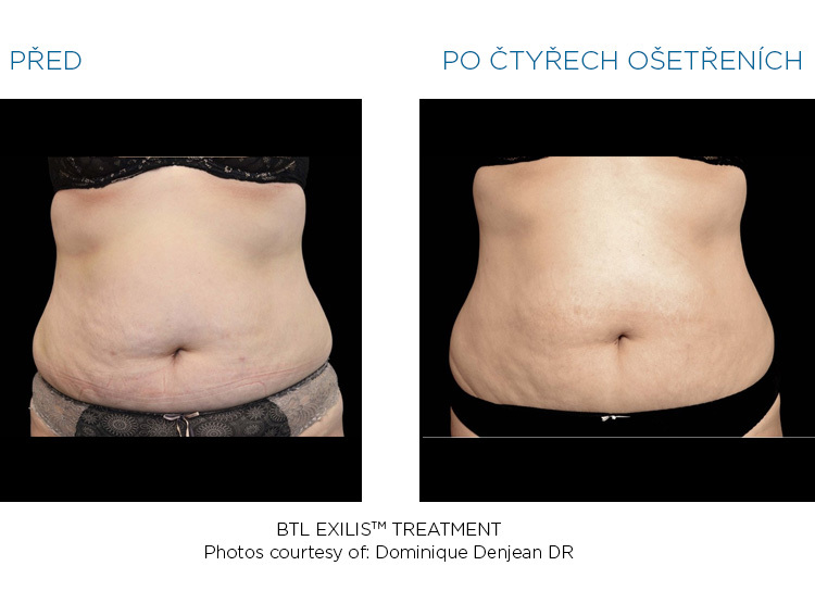 BTL-Exilis-female-abdomen-before-after_2
